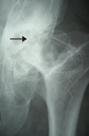カルシウム不足で骨と骨が接触し、痛みが出る。歩くのも困難な股関節で、手術を勧められる状態