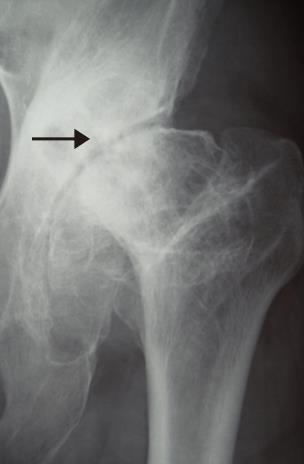 骨と骨の間のすき間がはっきりと出る。歩けるまで改善した股関節。社会復帰可能です。